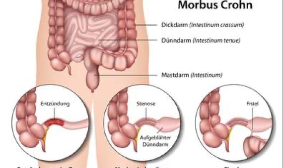 Judi S., Morbus Crohn, 11/2018